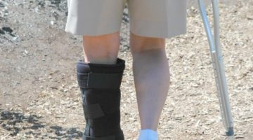 How to Find the Best Work Injury Attorney