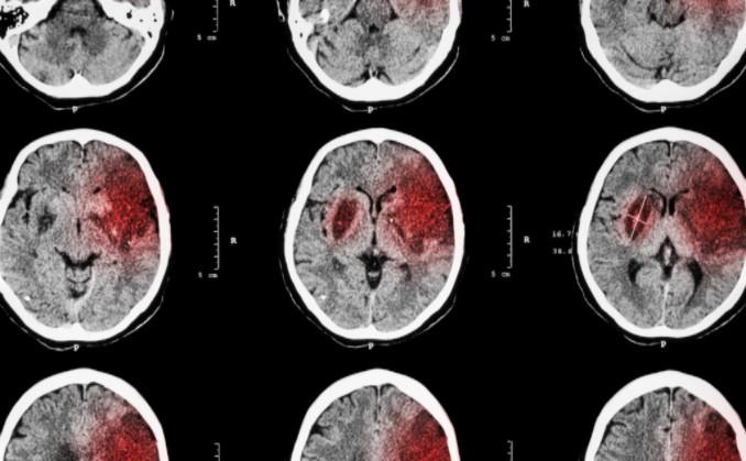 causes of brain injuries